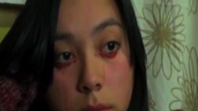 Insolite : elle pleure des larmes… de sang!