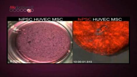 Un foie humain créé grâce à des cellules souches