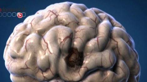 Travailler plus longtemps protégerait de la maladie d'Alzheimer