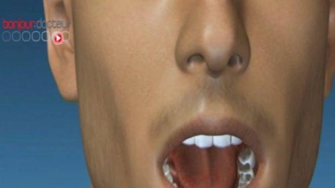 Ne mentez plus, vos dents disent tout !