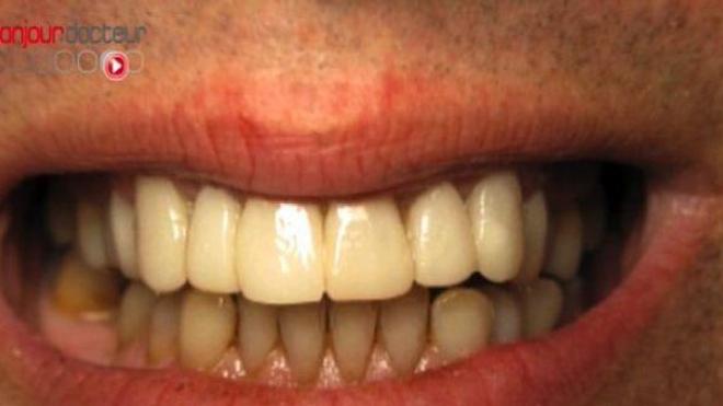 Blanchiment des dents : des produits sur la touche
