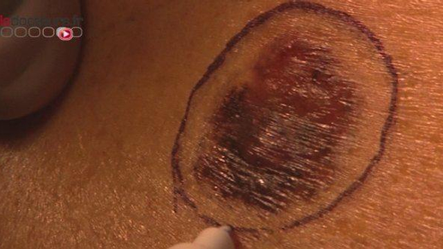 Cancer de la peau : les antioxydants pourraient favoriser la prolifération des métastases