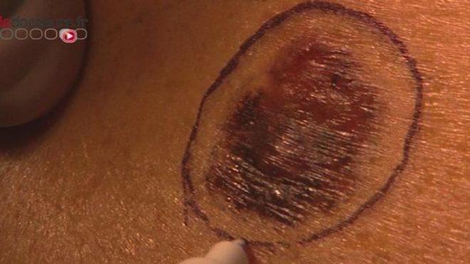 Le mélanome, aussi appelé cancer du grain de beauté, est un cancer extrêmement agressif de la peau.