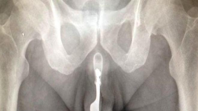 Un septuagénaire admis en urgence avec une fourchette dans l'urètre