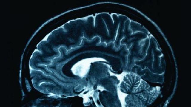 La maladie de Crohn toucherait aussi le cerveau