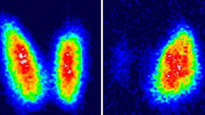 Opter pour une simple surveillance de certains cancers de la thyroïde ?