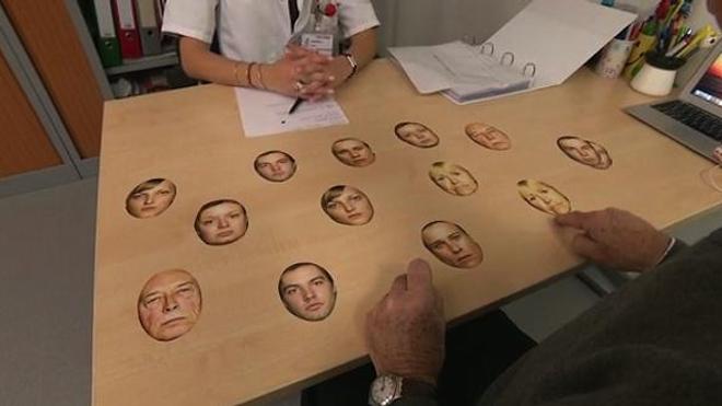 La prosopagnosie ou l'incapacité à reconnaître les visages