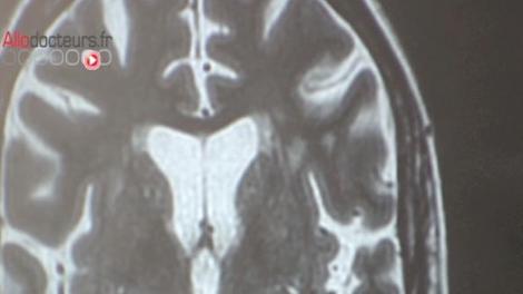 La migraine pourrait altérer les structures du cerveau à long terme