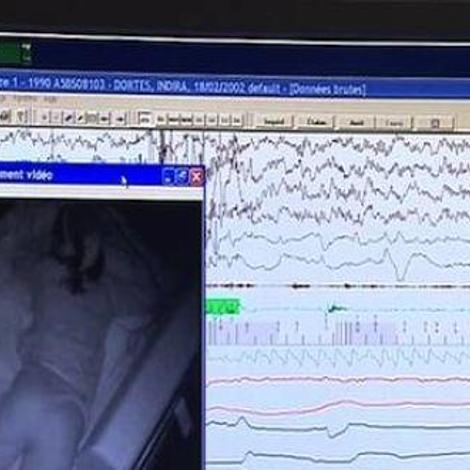 Des jambes qui ne dorment jamais, un vrai syndrome