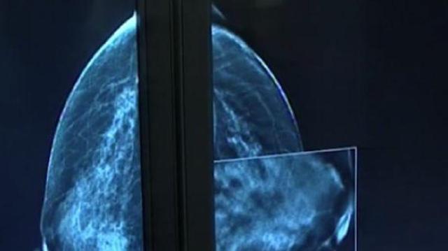 Dépistage du cancer du sein : après 70 ans, beaucoup de faux-positifs