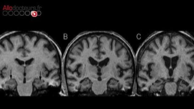 La recherche sur les maladies neurodégénératives est-elle en crise?