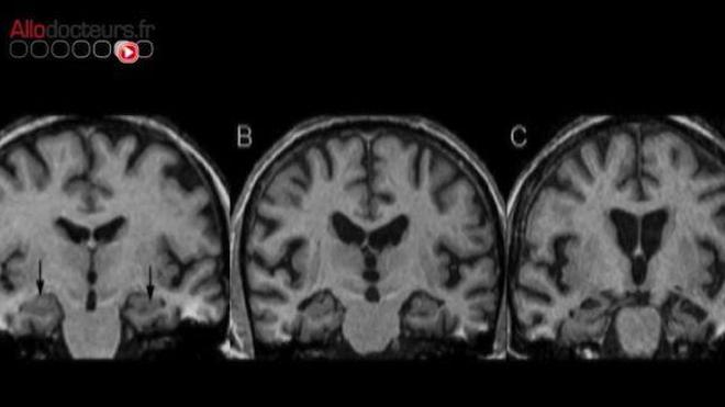 La maladie d'Alzheimer, une réaction à une infection ?