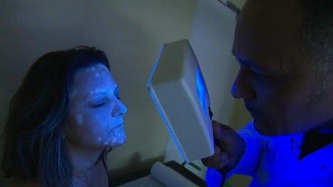 Vitiligo, quand la peau perd sa couleur