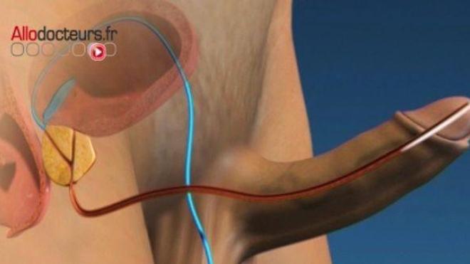 Un surdosage de Viagra® peut-il conduire à l'amputation du pénis ?