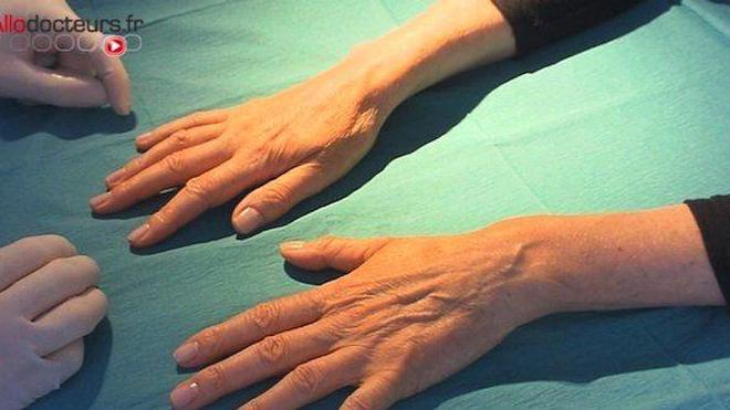 Une chimiothérapie effacerait les empreintes digitales (image d'illustration)