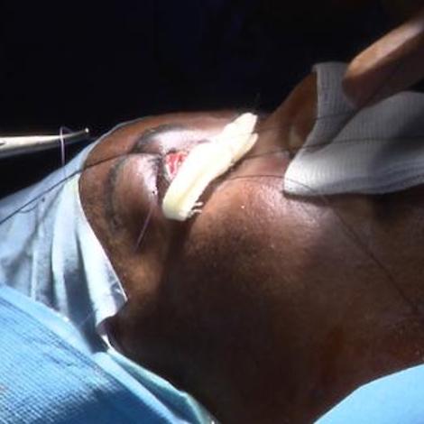 Cancer de la paupière : les paupières, siège de tumeurs