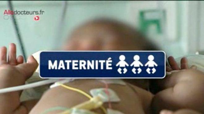 En 2014, 518 maternités étaient en service contre 1.369 en 1975.