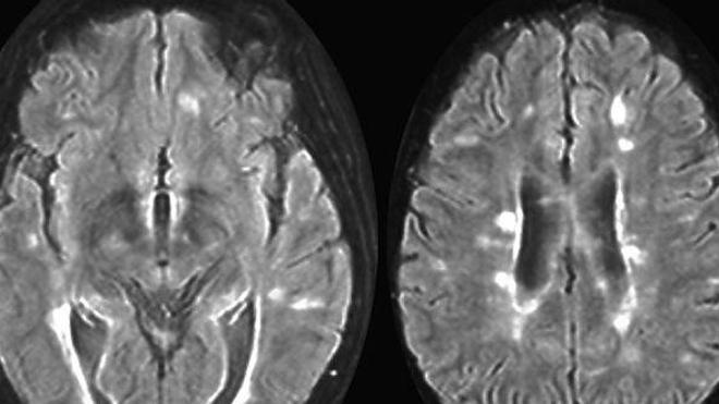 Sclérose en plaques : toujours plus de cas dans le monde ?