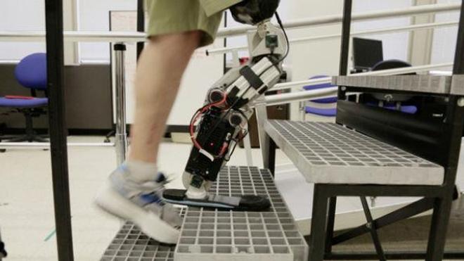 Une jambe artificielle animée par la volonté