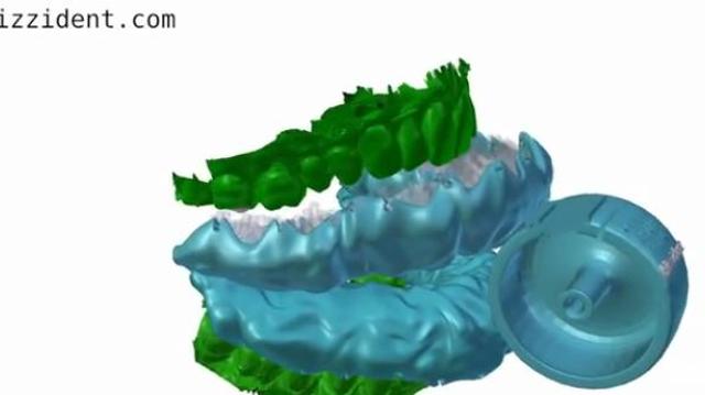 Un dentier amovible qui brosse les dents en 6 secondes !