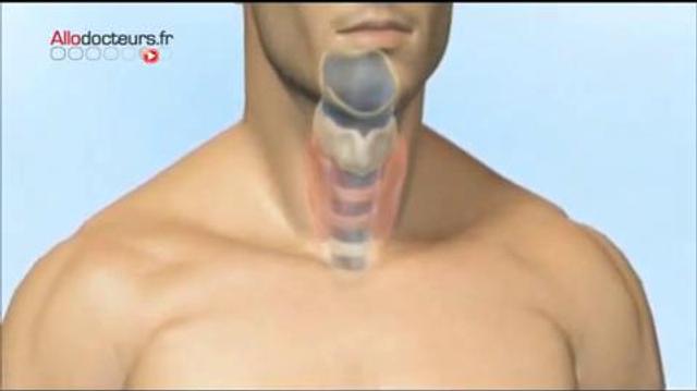 Thyroïde : 20% des ablations inutiles