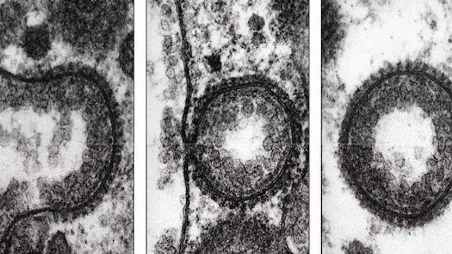 Un Nobel au coeur de la cellule