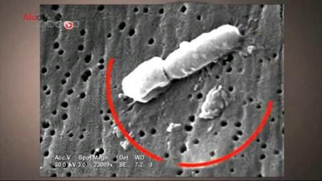 19 décès à Nice : une bactérie multirésistante suspectée