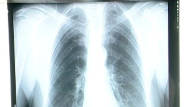 Il n'y aura pas de nouvelles recommandations de la HAS sur le dépistage du cancer du poumon avant 2020