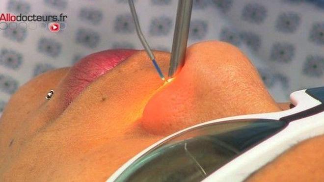 Rhume chronique : les solutions pour déboucher le nez