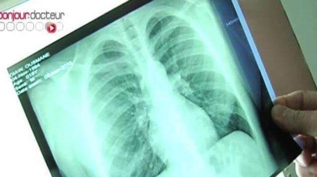 Un cas de tuberculose signalé dans un lycée de Meurthe et Moselle