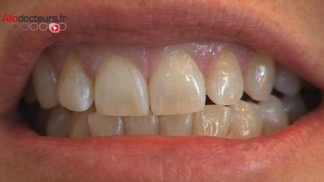 Je grince des dents la nuit, c'est grave?