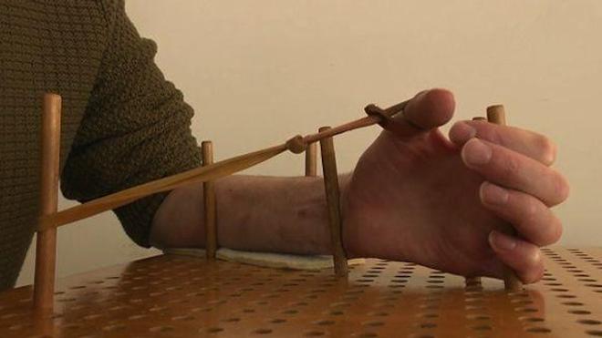 Paralysie du plexus brachial : les résultats de la chirurgie