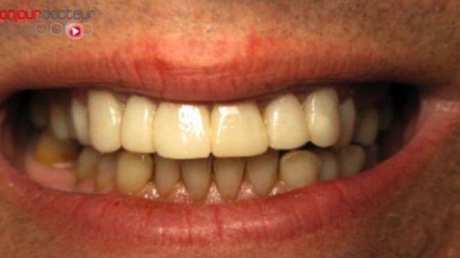 Dents : ''2 brossages par jour au lieu de 3, bonjour les dégâts !''
