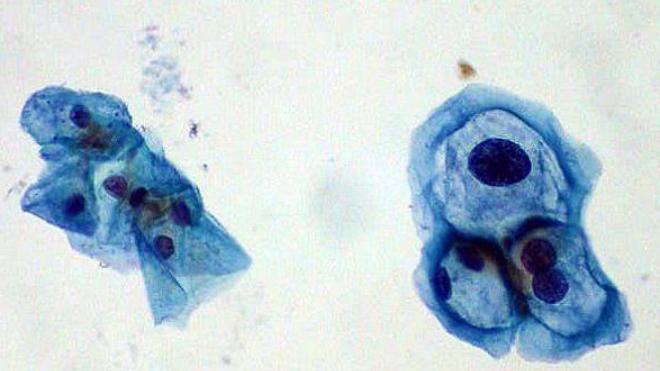A gauche, une cellule saine. A droite, une cellule infectée par le HPV.
