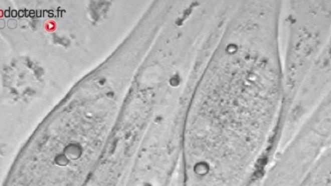 Du tissu pulmonaire grâce aux cellules souches