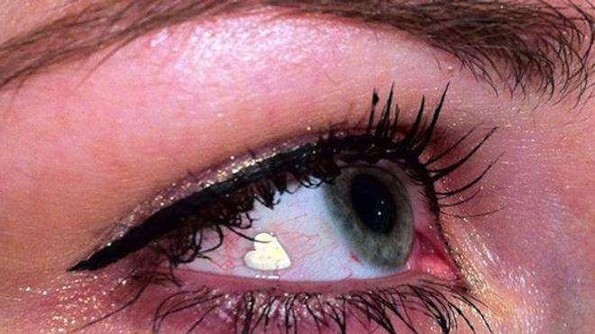 Une coquetterie dans l'œil