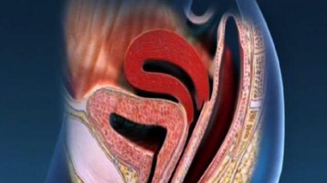 Prolapsus génital : efficacité prouvée de la rééducation périnéale