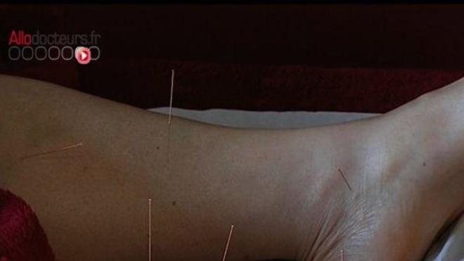 Ch@t : Et si on essayait l'acupuncture ?