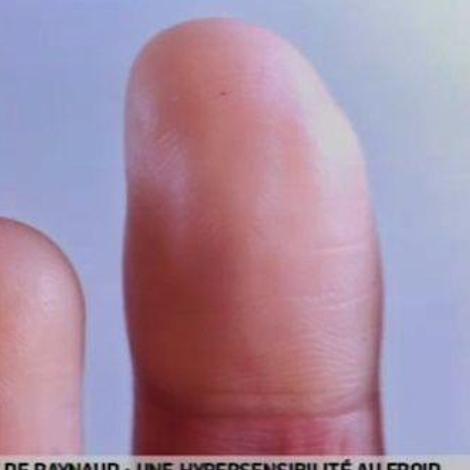 Maladie de Raynaud : une hypersensibilité au froid