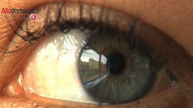Glaucome : une lentille de contact qui diffuse des médicaments