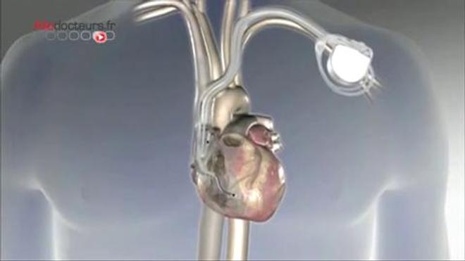 Vidéo - Un stimulateur au cœur du cœur
