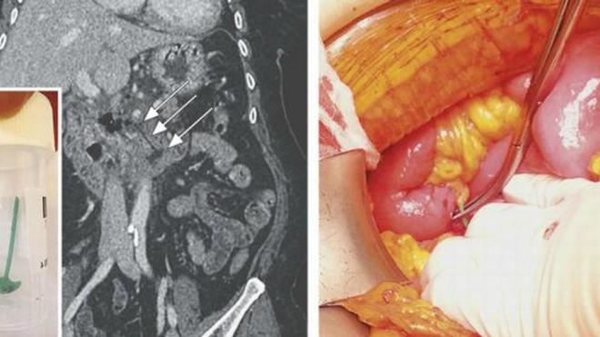 A gauche, l'image reconstruite par scanner 3D. A droite, le petit élément, prélevé avec des pinces. A gauche (en bas), la hache extraite. (Source : NEJM, clichés des auteurs)