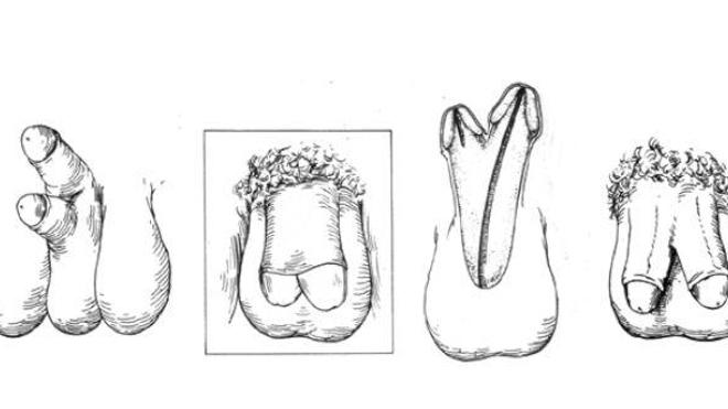 Différents degrés de diphallia, illustrés par Johnson en 1974. (Source : Illustrated Encyclopedia of Human Anatomic Variation)