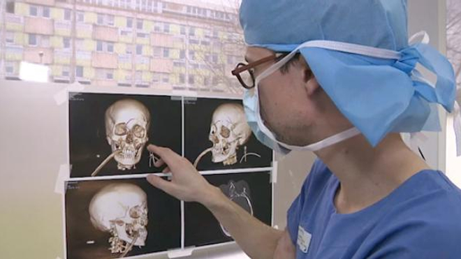 Chirurgie du visage : une véritable reconstruction
