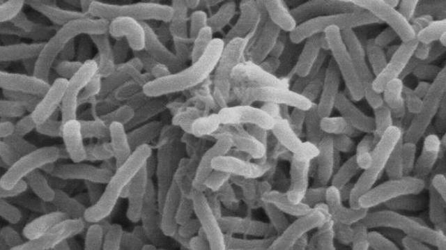 Des chercheurs analysent une souche ancienne du choléra