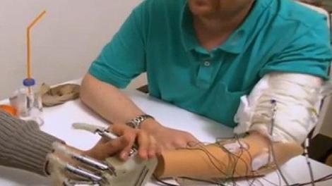 Il retrouve le sens du toucher grâce à une nouvelle prothèse