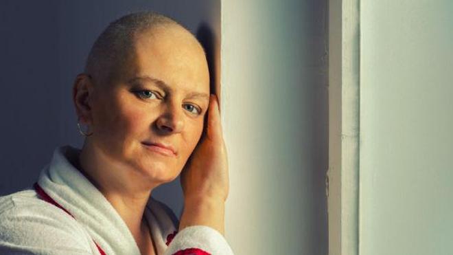 Chimiothérapie : le cap de la perte des cheveux. (© prudkov - Fotolia.com)