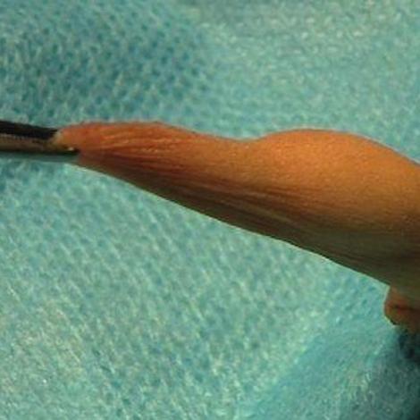 Cinq questions sur la circoncision