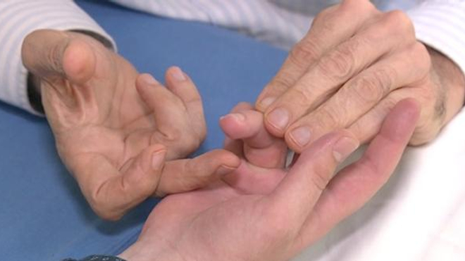 La main, un outil utile mais fragile