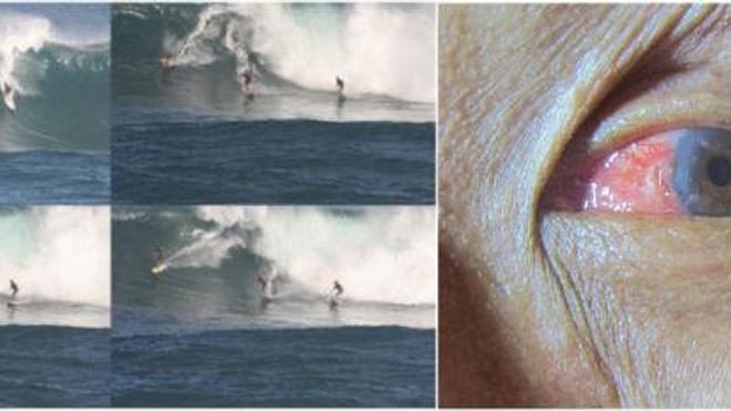 A gauche, les étapes de ''l'opération''. Le surfer (en haut à gauche, planche rouge et jaune) plonge sa tête dans la vague et parvient à garder son équilibre. A droite : résultat de l'opération. Le ptérygion recouvrait la zone rose à gauche de l'oeil.